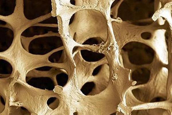A bone affected by osteoporosis. Image credit: German Tenorio via Flickr, CC BY-SA 2.0