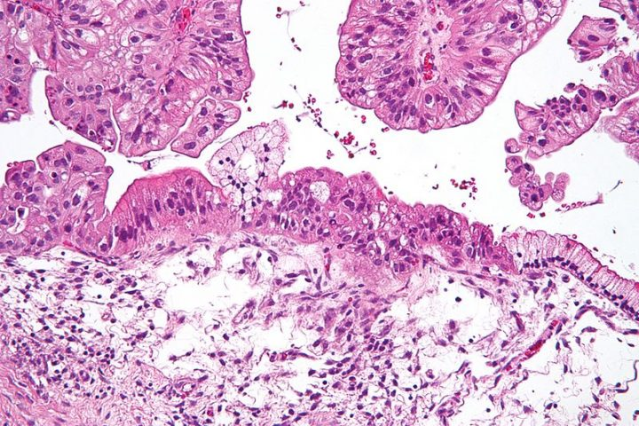 Intermediate magnification micrograph of a low malignant potential (LMP) mucinous ovarian tumour. H&E stain. Image credit: Nephron via Wikimedia, CC BY-SA 3.0