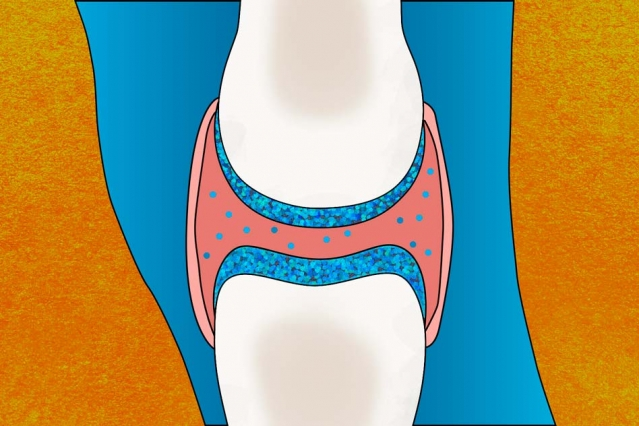 An illustration of the cartilage in a knee joint. Image credit: Christine Daniloff/MIT