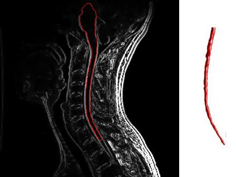 Cervical spine MRI with enhancement showing multiple sclerosis. Image credit: NIH, Public Domain