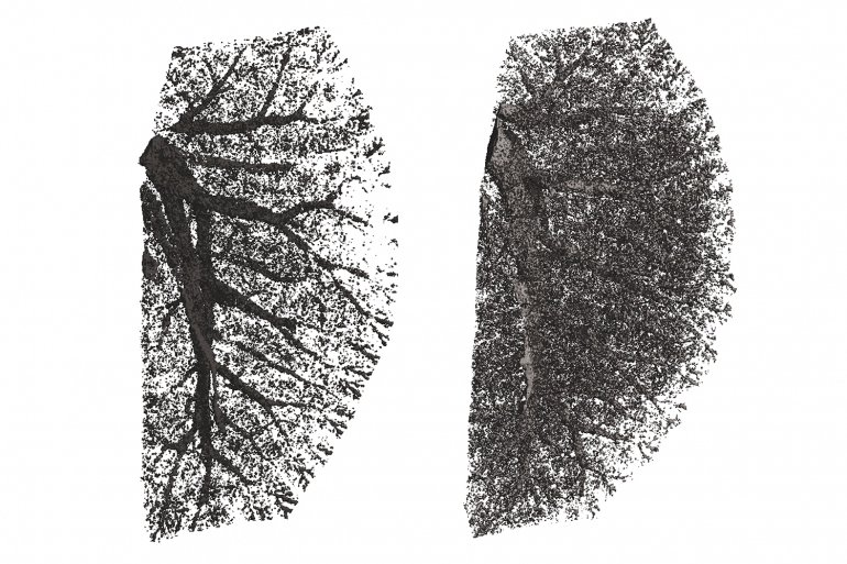 A normal mouse lung (left) and one with abnormal activation of hedgehog. Image credit: Tien Peng / UCSF