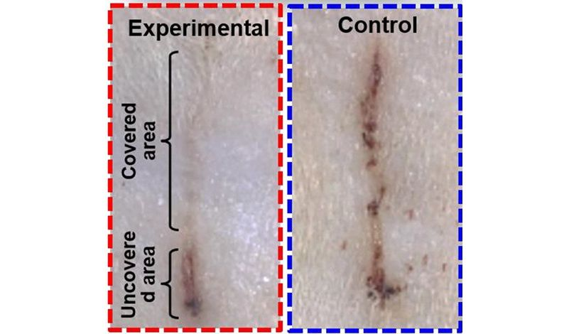 A wound covered by an electric bandage on a rat's skin (top left) healed faster than a wound under a control bandage (right). Image credit: American Chemical Society
