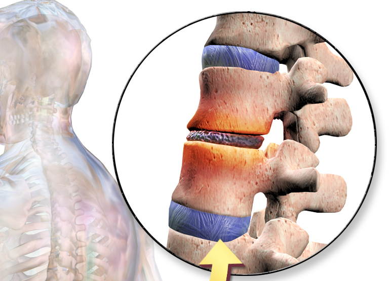 An illustration showing a segment of the spine. Image credit: BruceBlaus via Wikimedia, CC-BY-SA-4.0