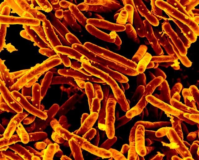 In some people, infection with the microbe Mycobacterium tuberculosis can lead to serious illness, and even death. In others it is harmless. Image credit: NIAID via Flickr, CC BY 2.0