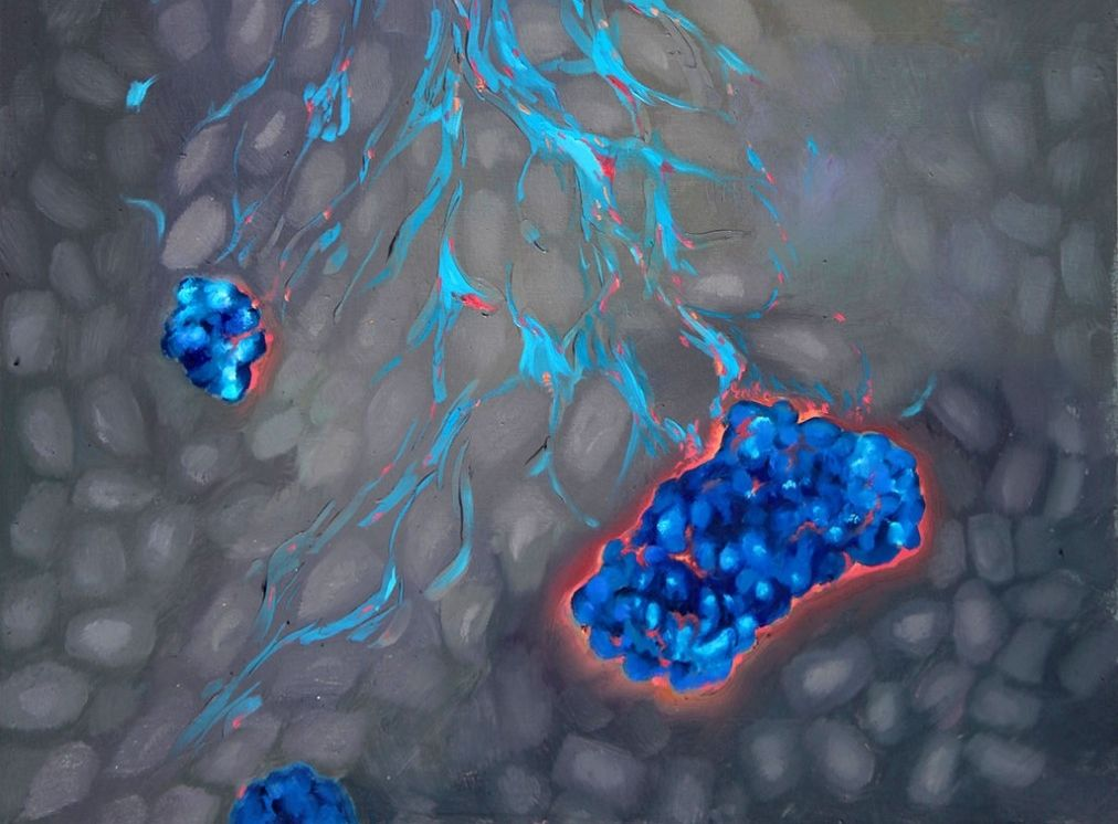Justin Annes, Tim Horton and colleagues developed a zinc-loving chemical compound (light blue) that helps deliver drugs that trigger insulin-producing cells in the pancreas (dark blue), but not others (gray), to replicate (red).. Image credit: Christine Gray
