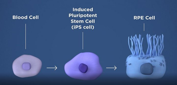 The researchers will take a patient's own blood cells, and in a lab, convert them into iPS cells capable of becoming any type of cell in the body. The iPS cells are then programmed to become retinal pigment epithelial cells, the type of cell that dies early in the geographic atrophy form of AMD. Image credit: NEI
