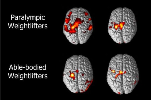 Functional Magnetic Resonance Imaging brain scans of two Paralympic weightlifters (top row) show that larger areas of their brains are active than when able-bodied weightlifters (bottom row) perform the same muscle control task. Image credit: Kimitaka Nakazawa