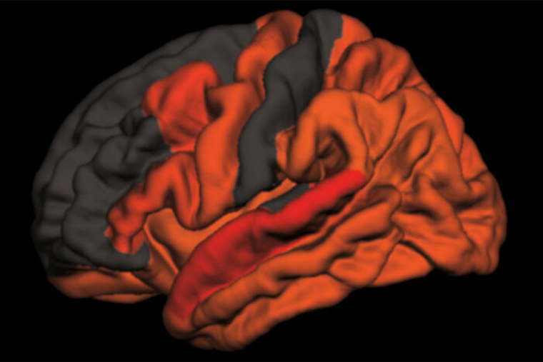 Reduced amounts of slow brain waves – the kind that occur in deep, refreshing sleep – are associated with high levels of the toxic brain protein tau. This computer-generated image maps the areas where the link is strongest, in shades of red and orange. A new study from Washington University School of Medicine in St. Louis has found that decreased deep sleep is associated with early signs of Alzheimer's disease. Image credit: Brendan Lucey