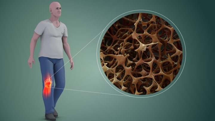 Osteoporosis in bones. Image credit: Scientific Animations, CC BY-SA 4.0