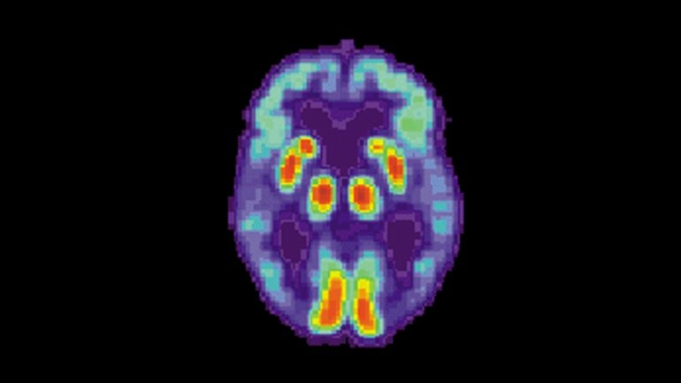 A PET scan of the brain of a person with Alzheimer's disease. Image credit: National Institute on Aging