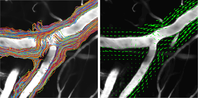 In the left panel, superimposed particle tracks reveal that cerebrospinal fluid flows through wide perivascular spaces, which are approximately as large as the adjacent artery. Averaging together hundreds of thousands of measurements produces a velocity field, shown in the green arrows in the right panel, which demonstrates that the net cerebrospinal fluid flow is in the same direction as the blood flow. Illustration by University of Rochester illustration / Jeff Tithof