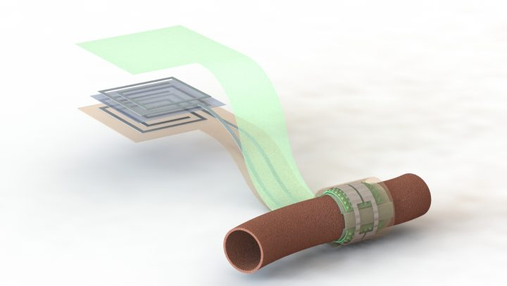 Artist's depiction of the biodegradable pressure sensor wrapped around a blood vessel with the antenna off to the side (layers separated to show details of the antenna's structure). Image credit: Levent Beker