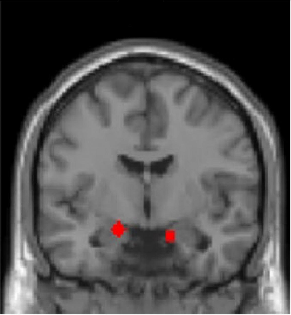 Regions of interest used in the computational imaging analysis (the amygdala, defined functionally, is shown in red). Image credit: Nature Neuroscience, Dr. Schiller, Dr. Harpaz-Rotem