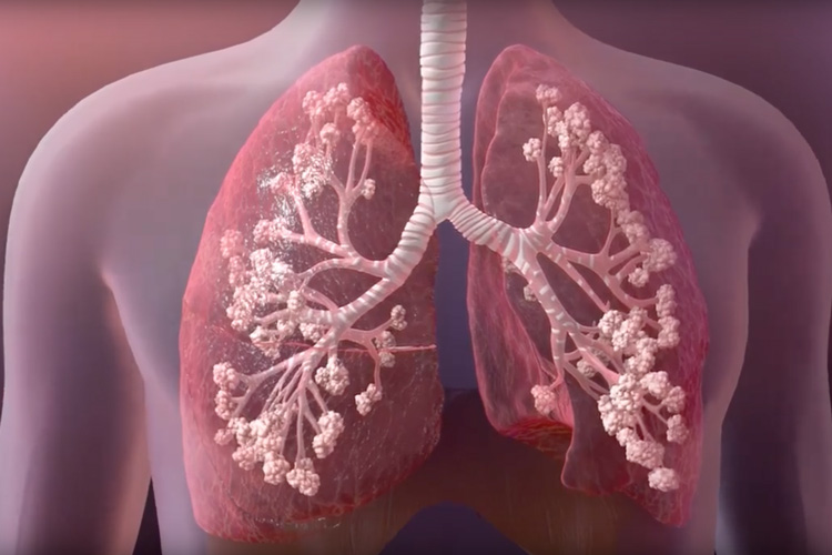 Cystic fibrosis affects the lungs and other organs, primarily by making the mucus that lines the lungs viscous, clogging small airways and leading to infections. Image credit: Cystic Fibrosis Foundation