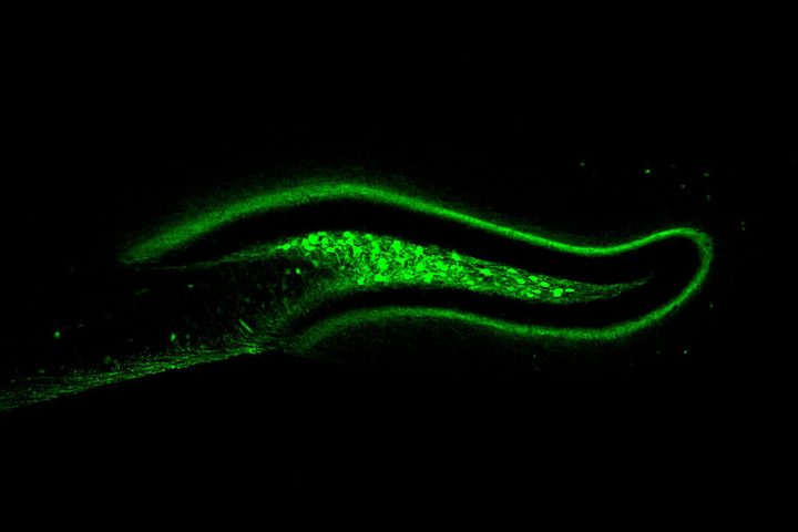 Activation of hD2R neurons, pictured here, prompts mice to decrease their food intake. Image credit: Rockefeller University