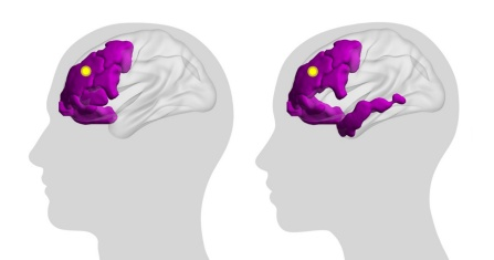 A conceptual illustration demonstrates a key finding of a new study on brain activity: In computer simulations, applying targeted stimulation to the same region of the brain in different people resulted in different patterns of brain activity. Image credit: Rebecca Farnham / Kanika Bansal / University at Buffalo