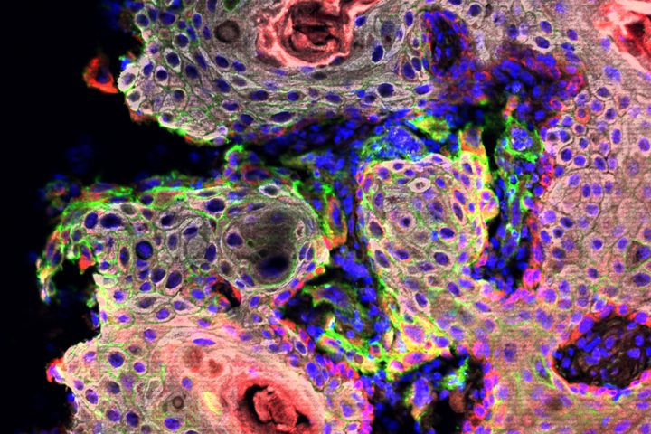 Scientists found that a molecule called CD80, shown here in green, helps tumor stem cells survive immunotherapy. Image credit: Rockefeller University
