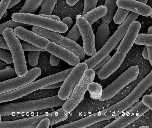 Escherichia coli: Scanning electron micrograph of Escherichia coli, grown in culture and adhered to a cover slip. Credit: Rocky Mountain Laboratories, NIAID, Public Domain
