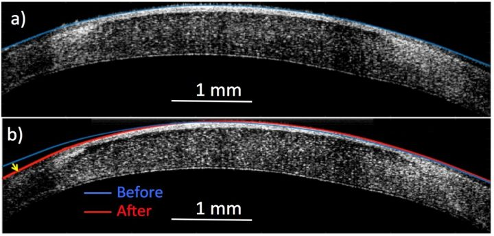 A new noninvasive process can alter the curve of a cornea from that seen in blue in a) to the new position seen in red in b) to fix vision problems. Image credit: Rachel Qu, Anna Stokolosa, Charlotte Culip