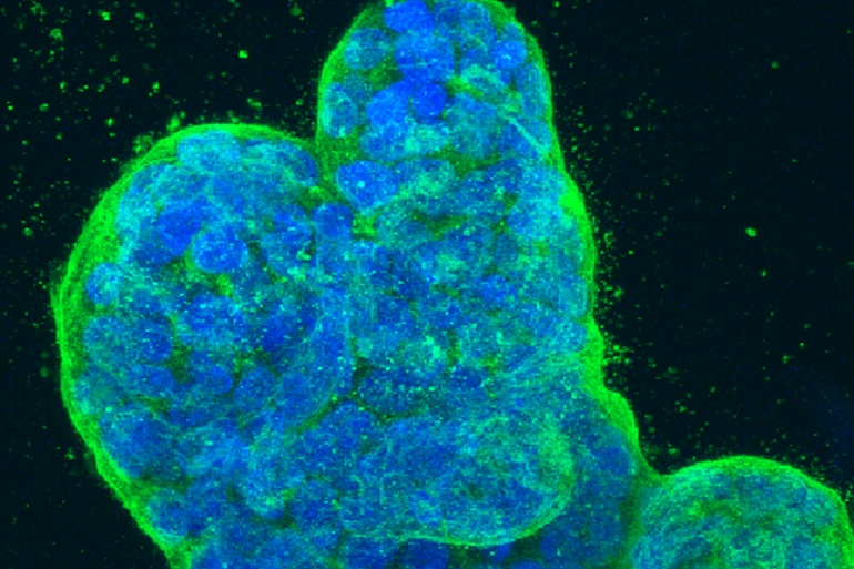 A three-dimensional culture of human breast cancer cells. Credit: Tom Misteli, Ph.D., and Karen Meaburn, Ph.D./NIH IRP