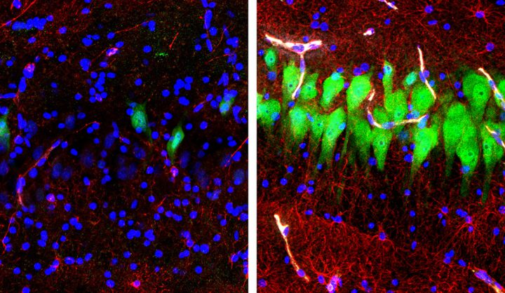 Immunofluorescent stains for neurons (green), astrocytes (red), and cell nuclei (blue) in a region of the hippocampus of a pig's brain left untreated 10 hours after death (left) or subjected to perfusion with the BrainEx technology. Ten hours postmortem, neurons and astrocytes undergo cellular disintegration unless salvaged by the BrainEx system. Image credit: Stefano G. Daniele & Zvonimir Vrselja; Sestan Laboratory; Yale School of Medicine