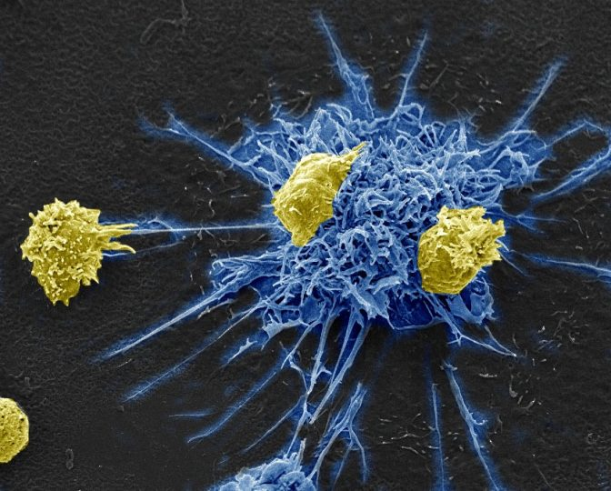 MDC1 (blue) signalling to T helper cells (yellow) that harbor latent HIV. Credit: Donna Stolz, Ph.D./University of Pittsburgh, Center for Biologic Imaging