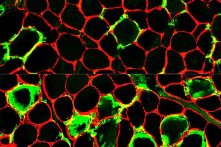 Immune scavenger cells (green) crowd around muscle fibers (red), damaging them and causing muscle pain and weakness. Researchers at Washington University School of Medicine in St. Louis have identified a previously unknown, rare muscle disease that can be treated with immunosuppressing drugs. Image credit: Alan Pestronk