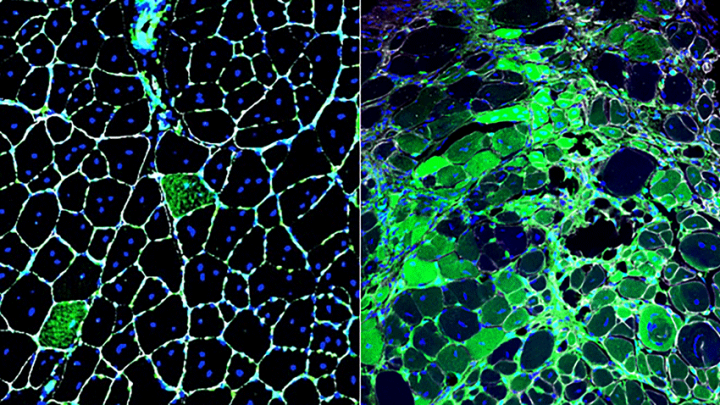 Newly discovered radiation-resistant stem cells are normally rare and inactive (left), but they take on a major role in muscle repair when regular stem cells are damaged by radiation (right). Image credit: Brack lab / UCSF.