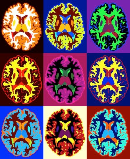 Axial MRI scans of a person with multiple sclerosis. Image credit: NIH