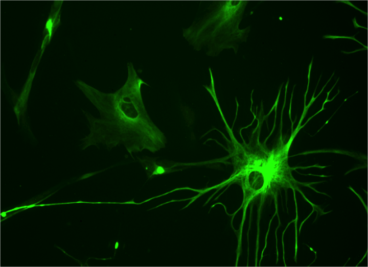 Human astrocytes are important for brain signaling. Researchers are gaining new insights into their function by studying their worm equivalent. In image: 23 week human culture astrocyte stained for GFAP. Image credit: Bruno Pascal via Wikimedia, CC-BY-SA-3.0