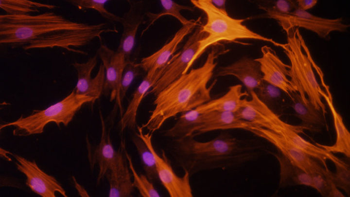 Skin fibroblasts isolated from a scleroderma patient. The red fluorescence is staining alpha-smooth muscle actin, a myofibroblast marker usually seen in high levels in these patients. These activated cells are the culprit in scleroderma fibrosis. Image credit: University of Michigan