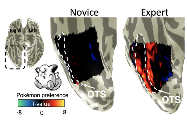 The occipitotemporal sulcus (OTS) of adults who played Pokémon extensively as children activated more (right) upon seeing images of Pokémon characters from their childhood videogames compared to adults who did not (left). Image credit: Jesse Gomez