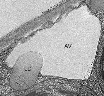 An electron micrograph showing a plant cell vacuole (AV) engulfing a lipid droplet (LD) under starvation conditions the scientists had created by placing the plants in the dark