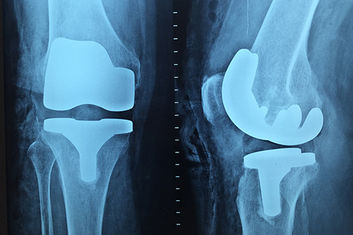 A knee replacement x-ray. Image credit: Pixabay, Pixabay licence