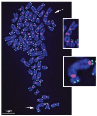 Chronic oxidative damage to telomeres (green) on the ends of chromosomes (blue) causes chromosome fusions (white arrows). Credit: Fouquerel et al. (2019). Mol Cell.
