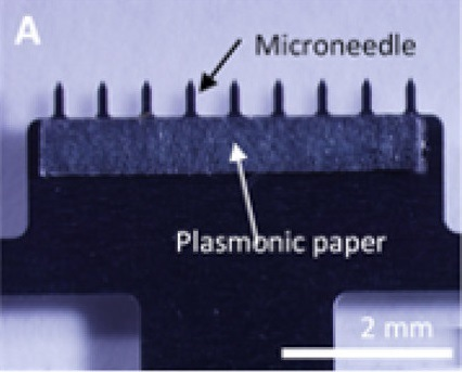 This microneedle patch can collect interstitial fluid onto plasmonic paper for analysis. Credit: Adapted from ACS Sensors 2019, DOI: 10.1021/acssensors.9b00258