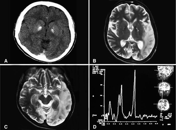 A computed tomography brain scan and magnetic resonance spectroscopy. Image credit: Abu-Amero KK, Al-Dhalaan H, Bohlega S, Hellani A, Taylor RW, Journal of Medical Case Reports 2009 3:77
