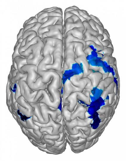 "Brain. Image credit: NIH via <a href=""https://www.flickr.com/photos/nihgov/47635812252"">Flickr</a>, Public Domain"