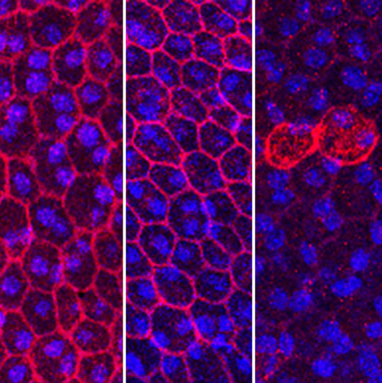 The loss of MYRF affects TMEM98 protein production, shown in mouse retinal epithelium cells, and eye development. Image credit: University of Michigan