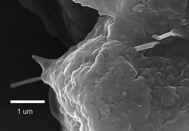 In this image you can see how the multiwalled carbon nanotube penetrates the alveolar epithelial lung cell. This study was done in mice, but it is logical to assume the same effects to be present in humans too. Image credit: Robert R. Mercer, Ann F. Hubbs, James F. Scabilloni, Liying Wang, Lori A. Battelli, Diane Schwegler-Berry, Vincent Castranova and Dale W. Porter / NIOSH via Wikimedia, Public Domain
