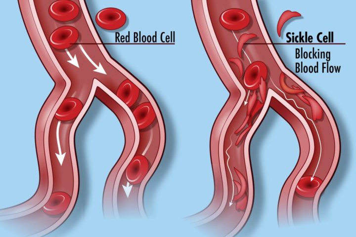 Normal blood cells (left) and the blood cells in Sickle cell disease, which do not flow through the circulatory system smoothly. Image credit: Darryl Leja, NHGRI
