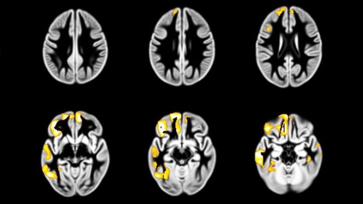 Brain regions where a decrease in grey matter between the ages of 14 and 19 years is associated with an increase in drunkenness frequency between 14 and 19 years. Credit: King's College London