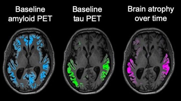 Tau PET brain scans (green) in early clinical-stage Alzheimer's patients accurately predict the location of brain atrophy measured by MRI 1–2 years later (magenta). Amyloid PET imaging (blue) does not predict the location of either tau or future brain atrophy. Image credit: Rabinovici lab / UCSF