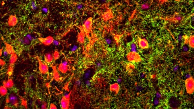 Gene links short-term memory to unexpected brain area - technology