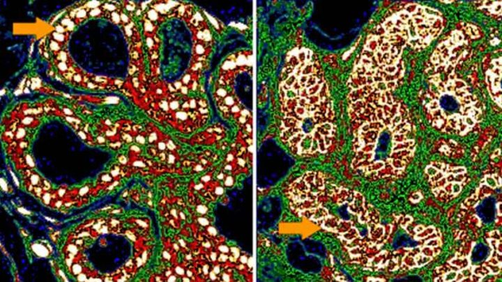 Scientists Train Computers to Recognize Which Early Stage Breast Cancers Will Spread - technology