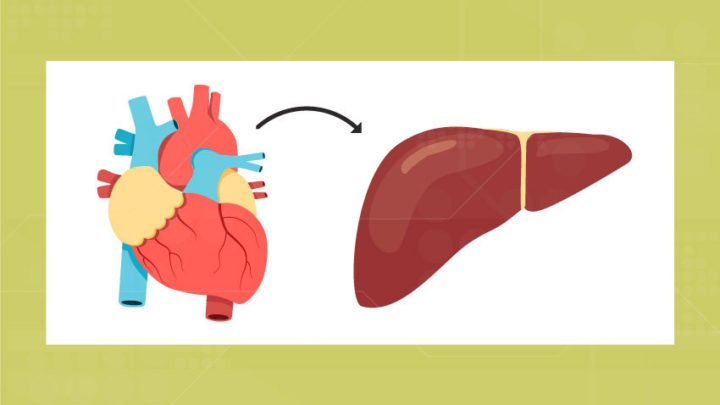 Nonalcoholic Fatty Liver Disease and Heart Failure: Is There a Connection? - technology
