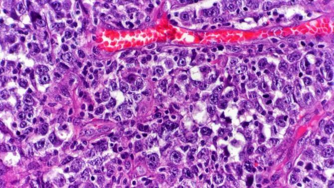 Tumor microenvironment helps aggressive lymphomas - technology