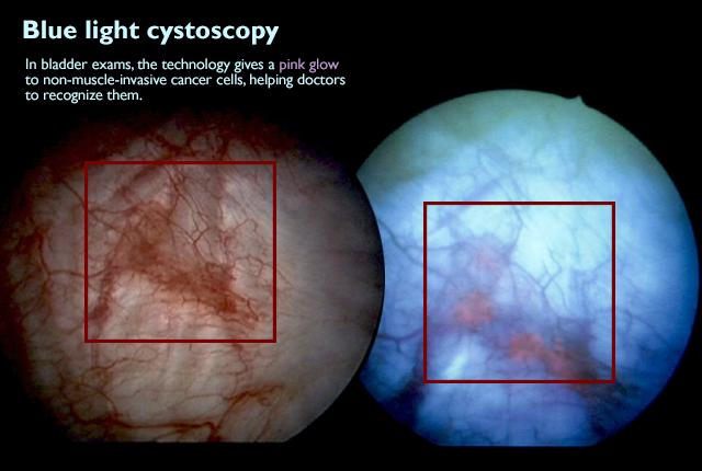 xblue light cystoscopy